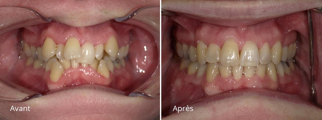 _Orthodontie